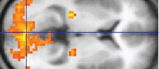 Jak MRI skenování využívá magnety a rádiové vlny k nahlédnutí do vašeho těla